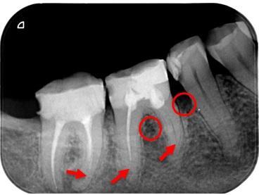 Nedostatočne zaplnené koreňové kanáliky (červené šípky), kostný defekt vplyvom zápalu (červené krúžky)